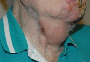 Figure 1. Right neck subdermal plaques with focal overlying ulceration.