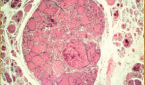 Light micrograph of a section through a thyroid gland with a colloid adenoma.