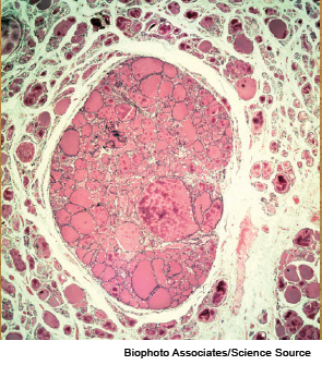 Light micrograph of a section through a thyroid gland with a colloid adenoma.