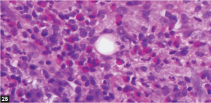 (click for larger image) Figure 2. (A) Punch biopsy of the left neck lesion with thickened stratum corneum and leukocytosis. (B) High powered field showing extensive eosinophilic infiltrate.