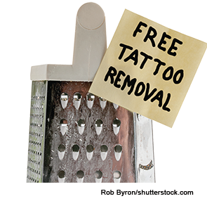 Tips for Adding Tattoo Removal to Your Practice