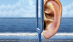 Drug Trials for Hearing Loss, Tinnitus Therapies Show Promise