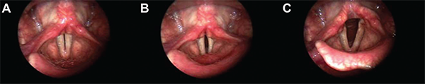 Series of vocal fold images displaying reduced right-sided kinesis. The left vocal fold showed increased excursion with greater movement than the right.