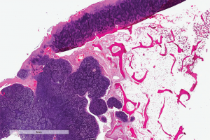 Digital slide depicting a whole-slide image of synovial chondromatosis, a lesion that sometimes involves the temporomandibular joint. Courtesy of the Center for ePathology, Cleveland Clinic.