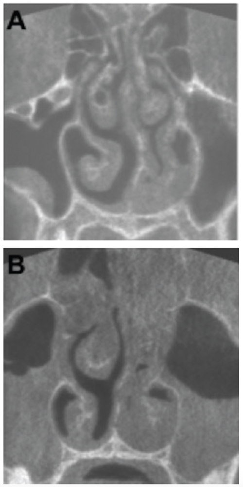 KA) Coronal plane of a CBCT scan from a patient three days after onset of symptoms. Haller cell and concha bullosa are present on the right side, and a cyst is present in the right maxillary sinus. The nasal septum is deviated to the left (19.4°). Both osteomeatal complexes are open, and other paranasal sinus mucosal abnormalities are not present. (B) Coronal plane of a CBCT scan from a patient nine days after onset of symptoms. There are air-liquid levels in the left maxillary sinus and gas bubbles in the right. The patient underwent maxillary sinus aspiration, which was cultured for Haemophilus influenzae.