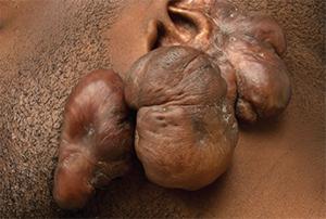 Keloid scars following folliculitis.