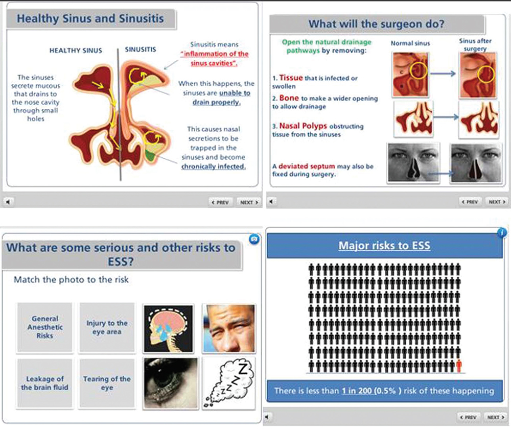 Figure 1. Screenshots of Dr. Sowerby's multimedia module for patient consent. Audio voice-over, images, and relevant figures were synchronized to convey clinical information. Animations were used to describe visual phenomena. To optimize patient comprehension, the module contained information at the eighth grade level and incorporated large fonts, bulleting, bolding, and underlining, as well as graphic displays using pictographs of risks and benefits. The module was designed to be interactive to let the patient control the information flow rate. Credit: The Laryngoscope. ©The American Laryngological, Rhinological and Otological Society, Inc.