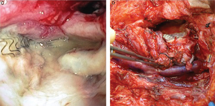 Figure 1. (C) Direct pharyngoscopy showing exposed covered stent in the pharynx. (D) Definitive vascular reconstruction of the left carotid artery with superficial femoral vein graft. Credit: Copyright 2016 The American Laryngological, Rhinological and Otological Society, Inc.