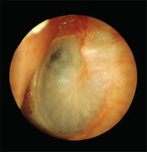 Endoscopic view of the tympanic membrane.