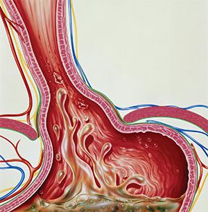 Gastroesophageal reflux.