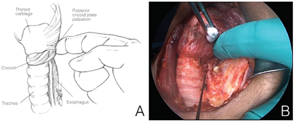 Figure 1. A) Laryngeal twitch can be palpated with a finger placed on the posterior aspect of the larynx during recurrent laryngeal nerve (RLN) or vagal stimulation. B) Stimulator probe points to the left RLN in the photo. Credit: Copyright 2016 The American Laryngological, Rhinological and Otological Society, Inc.
