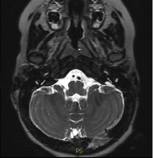 Deafness from enlarged vestibular aqueduct see on an MRI.
