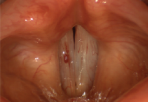 Vascular lake on the lateral half of the superior surface of the right vocal fold. Medial to it is a linear varix. Copyright 2016 The American Laryngological, Rhinological and Otological Society, Inc.