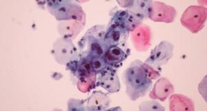 Human papillomavirus.