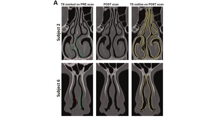 Computational Modeling Shows Promise for Otolaryngology Use