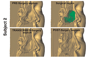 Figure 2. 3D transcribed-surgery model of the nasal septum.