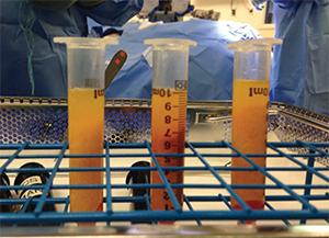 Autologous fat, shown as centrifuged fat.