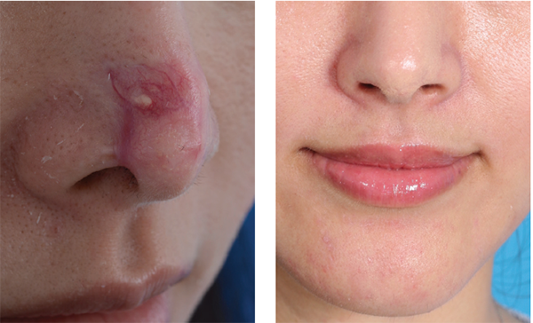 These images show a case handled by Stephen Park, MD, that involved a filler injection gone awry and his surgery to correct nose-tip irregularities.