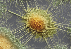 Colored scanning electron micrograph (SEM) of squamous cell carcinoma cells from a human mouth.