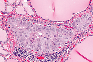 Micrograph of a papillary thyroid microcarcinoma