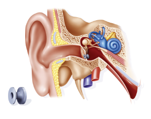 Ventilation tube set up in the ear at the level of the tympanic membrane to improve aeration of the middle ear to treat acute otitis.