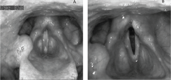 Effects of the continuous LP system stimulation during and in absence of phonation. (A) Aligned vocal folds during phonation of the vowel [eee]. The position of both arytenoid cartilages is symmetric and the vocal folds show the same length and tension. The adduction required to phonate overrides the abduction elicited by the LP system. (B) Abduction of the right vocal fold caused by electrical posterior cricoarytenoid muscle stimulation via the LP system in absence of phonation. The right arytenoid cartilage shows dorsolateral shifting, whereas the vocal fold is driven into a position that can be classified between paramedian and intermedial. Accordingly, the stimulation mediated by the LP system results in the formation of a clearly visible glottal gap of about 3 to 4 mm. Credit: Copyright 2017 The American Laryngological, Rhinological and Otological Society, Inc.