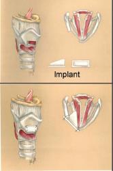 Medialization laryngoplasty procedure.q