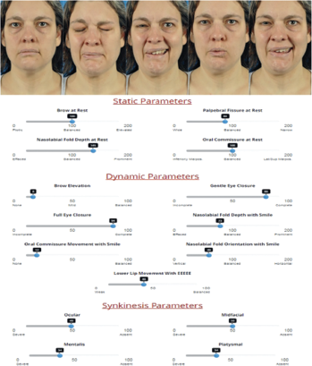 Facial grading using the electronic clinician-graded facial function (eFACE) scale in a patient with postparalysis facial palsy secondary to pregnancy-associated Bell's palsy. © The American Laryngological, Rhinological and Otological Society, Inc