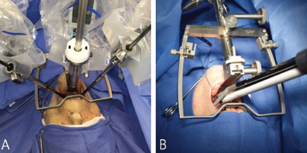 Comparison of bedside setup for robotic tongue base resection. Patient bedside setup of the flexible, single-port da Vinci Sp robotic surgical system (A) and the rigid, multiarm da Vinci Si robotic surgical system (B). The camera is positioned below in the da Vinci Sp's cannula. The Sp system offers more space for the bedside surgical assistant. © 2017 The American Laryngological, Rhinological and Otological Society, Inc.