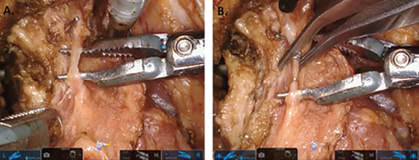 Isolation of small branching vessels with da Vinci Sp dual-forceps dissection. (A) The Maryland forceps (left) are providing traction and the fenestrated bipolar forceps (right) are being used to isolate a small branching vessel within the deep tongue musculature. The cautery spatula (top) is being used as a blunt retractor to provide slight counter traction. (B) The vessel has been isolated and is being controlled with surgical clips that are placed by the bedside assistant. ©  2017 The American Laryngological, Rhinological and Otological Society, Inc.