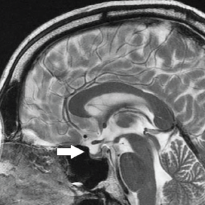 Midsagittal, T2-weighted MRI demonstrating compression of the pituitary gland (arrow) in a patient with idiopathic intracranial hypertension. This qualifies as a positive empty sella sign.
