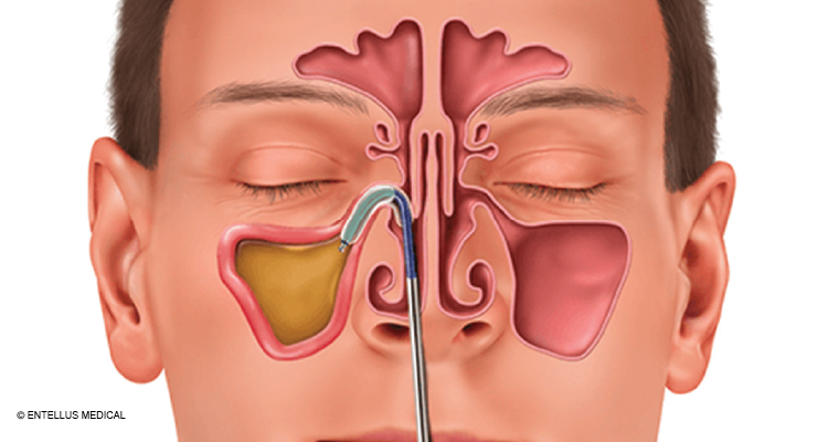 First Clinical Consensus Statement on Balloon Dilation Aims to Ensure Patient Safety