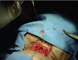 Single-stage laryngotracheal reconstruction