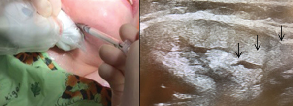 Botulinum toxin A injection into the right submandibular gland under ultrasound guidance. Positioning of the ultrasound probe in the submandibular region (left) and ultrasound image of the Botox injection with the black arrows highlighting the tract of the needle as it enters the submandibular gland (right).