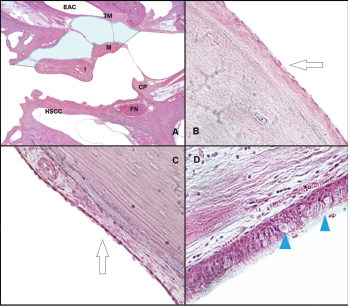 Histological analysis of the middle ear space. (A) Slide from a left ear, at the level of the pars flaccida, showing the space where the ciliated cells were counted at the epitympanum: lateral side of the malleus and incus, and medial side of the lateral wall. The light blue area represents the area where the ciliated cells were counted (H&E, 1 × magnification). (B) The arrow shows the flat epithelium located at the lateral side of the malleus (H&E, 10 × magnification). (C) The arrow shows the flat epithelium located at the medial side of the lateral wall at the epitympanum (H&E, 10 × magnification). (D) Histological view of the respiratory-like epithelium that covers the lateral wall of the protympanum toward the Eustachian tube. The arrowheads show the goblet cells located at this space (H&E, 40 × magnification). CP = cochleariform process; EAC = external auditory canal; FN = facial nerve; H&E = hematoxylin and eosin; HSCC = horizontal semicircular canal; I = incus; M = malleus; TM = tympanic membrane. Credit: © 2018 The American Laryngological, Rhinological and Otological Society, Inc.