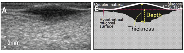 Example of sonographic visualization of oral tongue squamous cell carcinoma. Tumor is identified as a hypoechoic area on ultrasound. (B) Schematic representation of the difference between TT and DOI.  © Reprinted from Oral Surg Oral Med Oral Pathol Oral Radiol, 119(2):246–253, Copyright 2015, with permission from Elsevier.