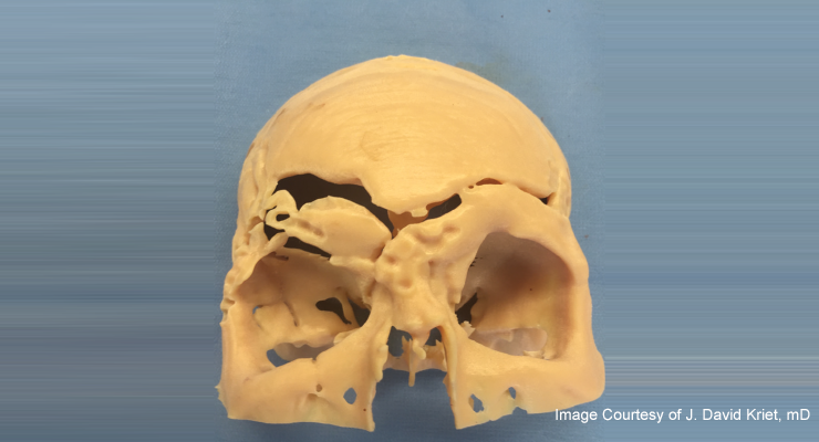 Virtual Surgical Planning and Custom Implants Can Help Treat Complex Facial Trauma