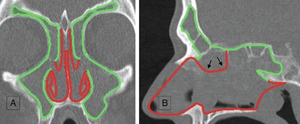 Green lines show the mucosal areas removed during the reboot surgery; red lines show the mucosal areas that are kept untouched. (A) Coronal view. Notice the untouched parts of middle turbinates kept as important suppliers for epithelial regrowth and surgical landmarks. (B) Sagittal view (black arrows point to the septal area that is removed during Draf III procedure).  © 2019 The American Laryngological, Rhinological and Otological Society, Inc.