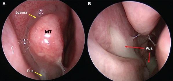 Representative nasal endoscopy findings of the middle meatus. (A) Edema and mucopurulence in the right middle meatus. (B) Purulence draining from an accessory maxillary sinus ostium through the right middle meatus and into the nasopharynx. © 2019 The American Laryngological, Rhinological and Otological Society, Inc.
