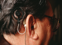 Does Cochlear Implantation Improve Cognitive Function?