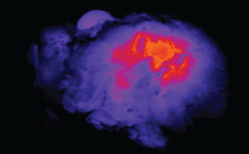 Image of light shining through a tumor specimen.