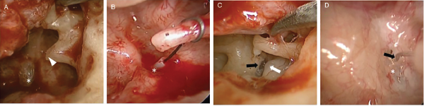 Fig. 1. Intraoperative findings. (A) Necrosis of long process of incus (arrowhead) resulting in prosthesis displacement from stapes footplate (*) (patient 2). (B) Prosthesis displaced to posterior rim of footplate (*) (patient 1). (C) Prosthesis displacement (removed) with prolapsed facial nerve (white arrow) and prominent bony overhang (black arrow), which was drilled to allow for prosthesis placement during revision surgery (patient 3). (D) Short wire loop prosthesis (black arrow) making poor contact with stapes footplate (*) (patient 4).