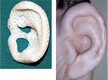Fig. 2. Images of a 3D-printed ear, and the ear after implantation.