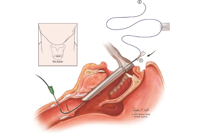 Fig. 1. Passing an intravenous catheter through a 1-cm skin incision over the cricothyroid membrane into the subglottis and retrieving the inferior suture end using the renal stone extractor