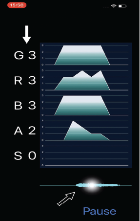 """Fig. 1. iPhone application named """"GRBASZero."""" White arrow: Displayed five voice evaluations in real-time. Black arrow: Tap on the waveform for checking the assessments."""
