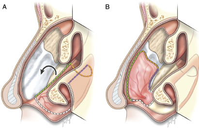Fig. 1. (A) Illustration depicting the exposed quadrangular cartilage donor site after nasoseptal flap harvest with outline of inferior meatus mucosal flap incisions and counterclockwise rotation. (B) Inferior mucosal flap rotated into position, covering the quadrangular cartilage. Note that the flap covers the superior area next to the nasal dorsum, which is a critical area that can lead to cicatricial contraction and saddle nose if left uncovered..