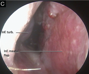 Fig. 2. (C) One month post-operative image showing well healed flap and no evidence of dehiscence.