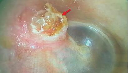 Figure 1a. Preoperative otoscopic examination (red arrow: pars flaccida cholesteatoma).
