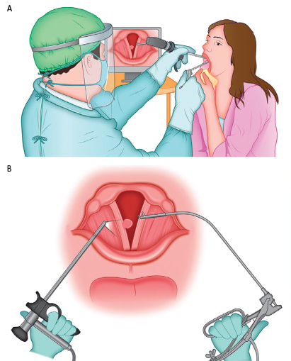 Figure 1. A) Operative setting for the procedure. The surgeon, wearing personal protective equipment, is observing the procedure on the monitor, maintaining adequate distance from the patient. The patient is seated as for routine otolaryngologic examination and is holding the tongue in a gauze. B) Schematics of the procedure. Curved microforceps for indirect laryngeal operations, held in the surgeon's right hand, is aiming for the lesion of the right vocal fold, under the visual guidance of the rigid telelaryngoscope held in the surgeon's left hand.