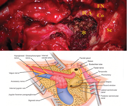 Figure 1. Schematic illustration of the infratemporal fossa type A approach (IFTA-A) with tension-free anterior rerouting of the FN. A) This intraoperative photograph shows the surgical field around jugular foramen after removing the jugular foramen paragangliomas with the modified surgical procedures. B) This illustration demonstrates anatomic structures around the jugular foramen following tension-free anterior rerouting of the facial nerve. Co = cochlea; FN = facial nerve; ICA = internal carotid artery; Sc = semicircular canal: * = jugular bulb, while the tumor was removed, and inferior petrous sinus was packed with Surgicel.
